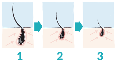 life-cycle-of-a-hair